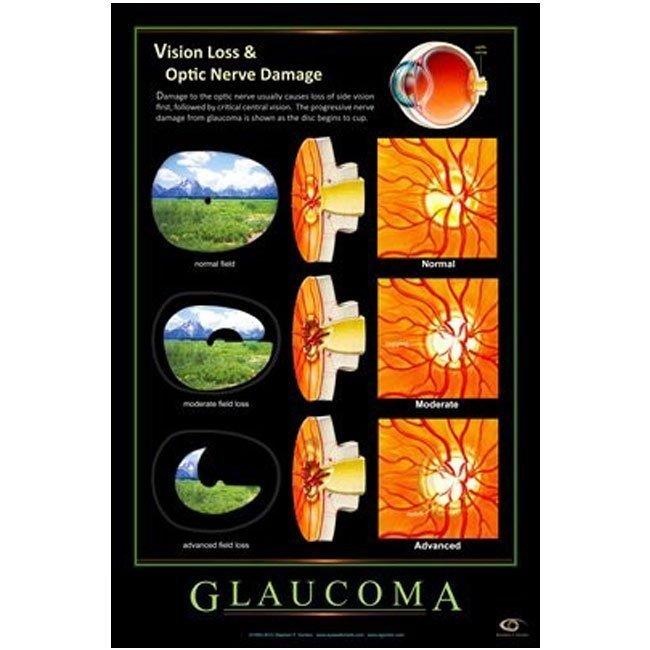Vision Loss & Optic Nerve Damage