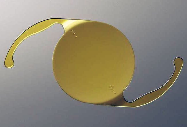 Toric Lens with Standard IOL